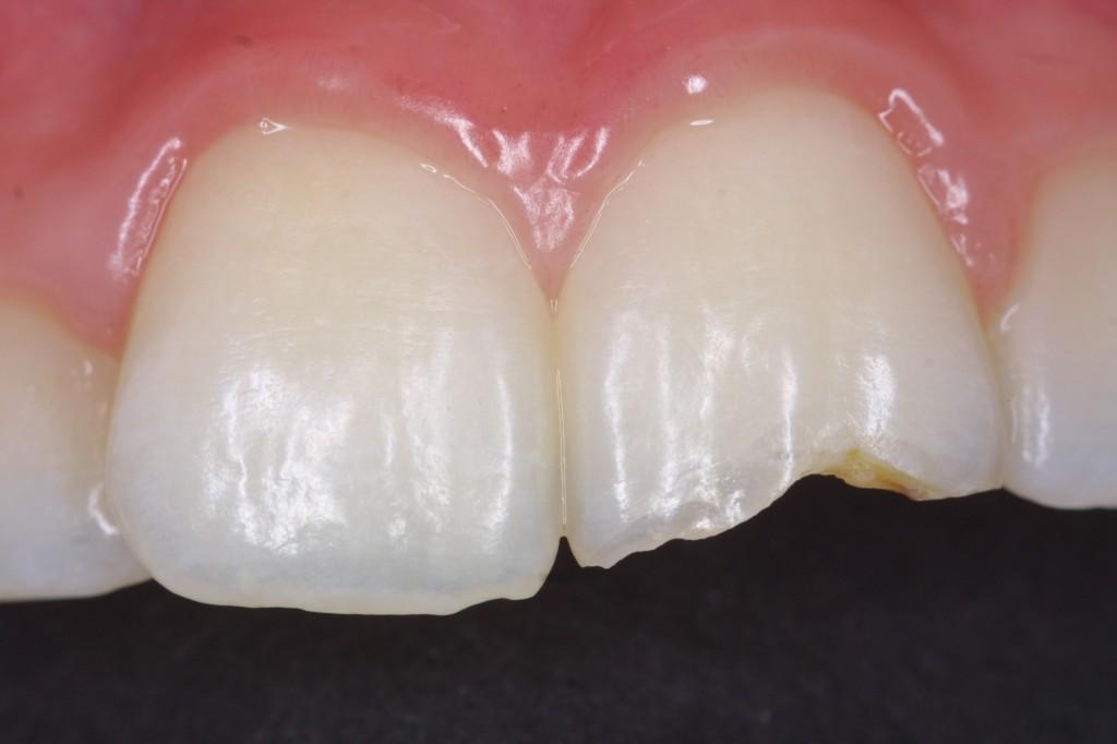 Dentist Expert Witness report service