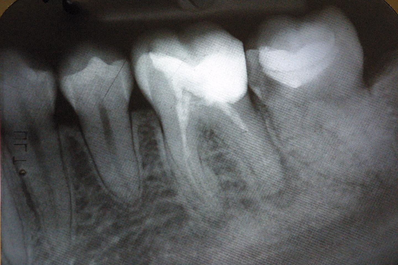 Dental Negligence root fillings
