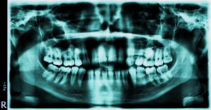 An OPG dental radiograph dental expert witness dentist